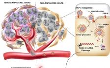 ACS Nano:肽基自组装体重塑前列腺肿瘤微环境抑制肿瘤转移