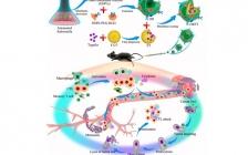 汤谷平教授课题组Nano Lett.:细菌外膜囊泡纳米药物用于肿瘤免疫治疗及肿瘤转移预防
